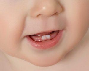 Vauvan suu lähikuvassa, suussa näkyy kaksi alahammasta.